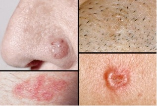 Skin cancer general information