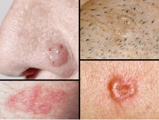 Skin Cancer – Generalinformation