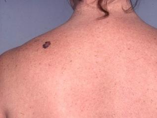 Malignant Melanoma andMoles