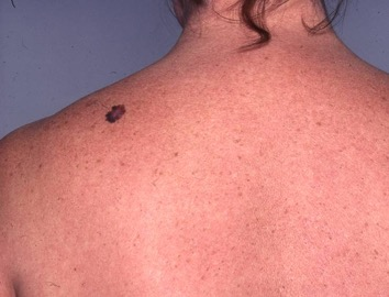 Malignant Melanoma and Moles