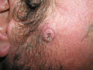 Basal and Squamous Cell Carcinoma (BCC / SCC)